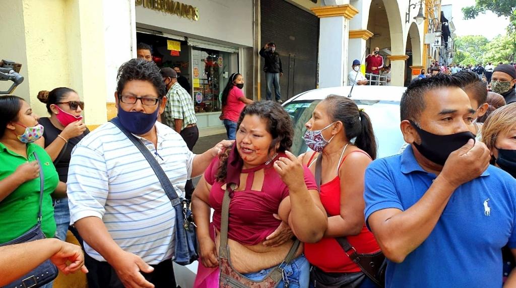 Mujer lesionada en operativo del Ayuntamiento de Cuernavaca